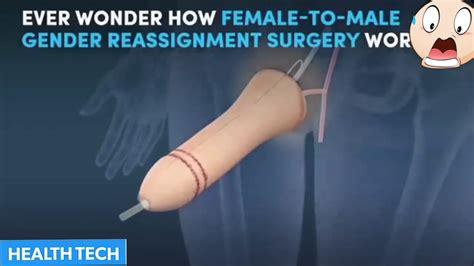 Ftm penis surgery stage 1 of 3 sava perovic jpg 1280x720