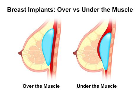 breast implant materials options jpg 1000x667