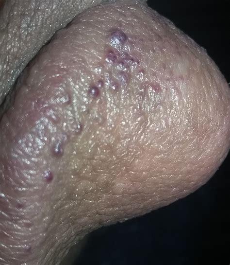 Pimple on penis, shaft, penile head bump, lump, small jpg 1739x1511
